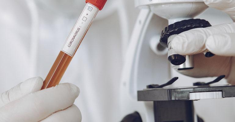 ¿Cómo lograr una mayor efectividad en la detección del COVID-19?